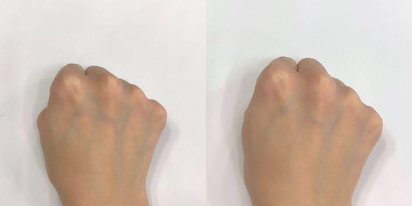 ルーセント(左:素肌 右:使用後)
