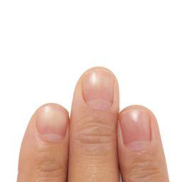 いつでも美しい指先を♡ ささくれの原因やケア方法、治し方って?の画像